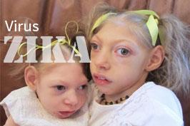 Bệnh do vi rút Zika